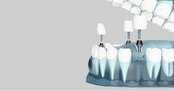 implantes dentales soluciones